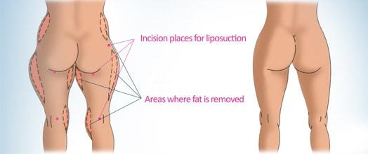 liposukcija zahvat