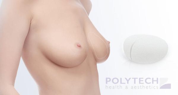 polytech implantati