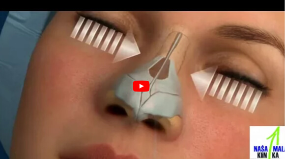 Operacija nosa - rinoplastika