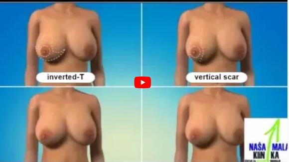 Smanjivanje (redukcija) grudi