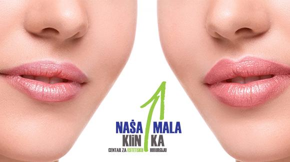 Sve što trebate znati o tretmanu povećanja usana hijeluronskim filerima