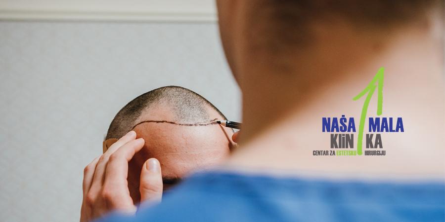 Transplatacija kose u Našoj maloj klinici-900