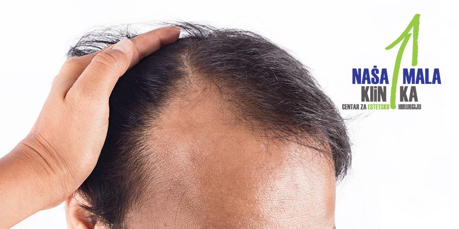 Alopecija i operativni zahvati transplatacije kose u Našoj maloj klinici