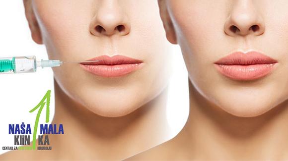 Ko su najbolji kandidati za hijaluronsko popunjavanje usana?580