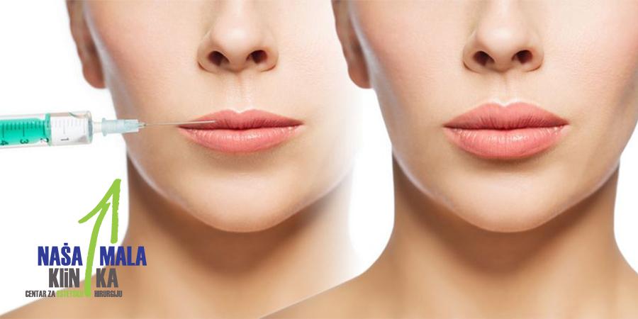Ko su najbolji kandidati za hijaluronsko popunjavanje usana?900