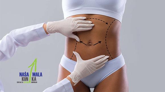 Abdominoplastika se može izvesti samostalno ili u kombinaciji s drugim hirurškim tehnikama-580
