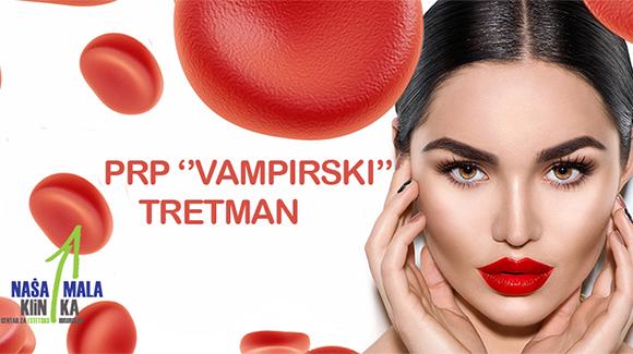 """""""Vampirski tretman"""" sve vise popularniji kako kod slavnih tako i kod običnih ljudi-580"""