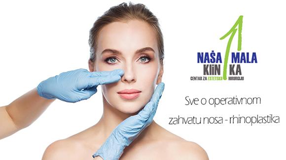 Sve o operativnom zahvatu nosa - rhinoplastika-580