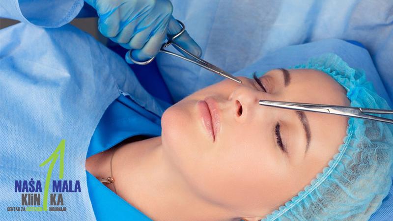 Sve o operativnom zahvatu nosa - rhinoplastika-txt
