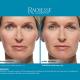 radiesse-naslovnica-580