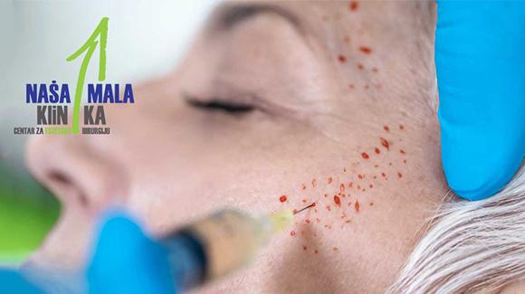prp-krv-lice-naslovnica-580