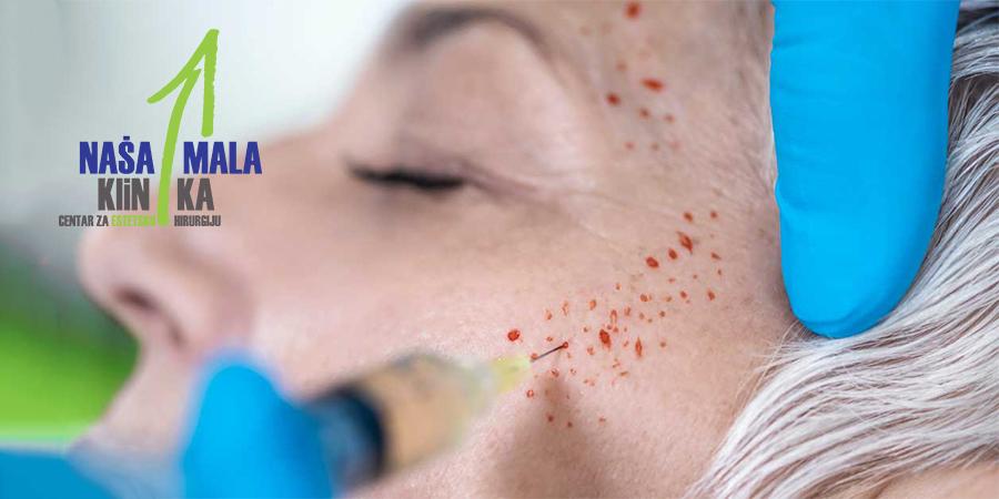 prp-krv-lice-naslovnica-900