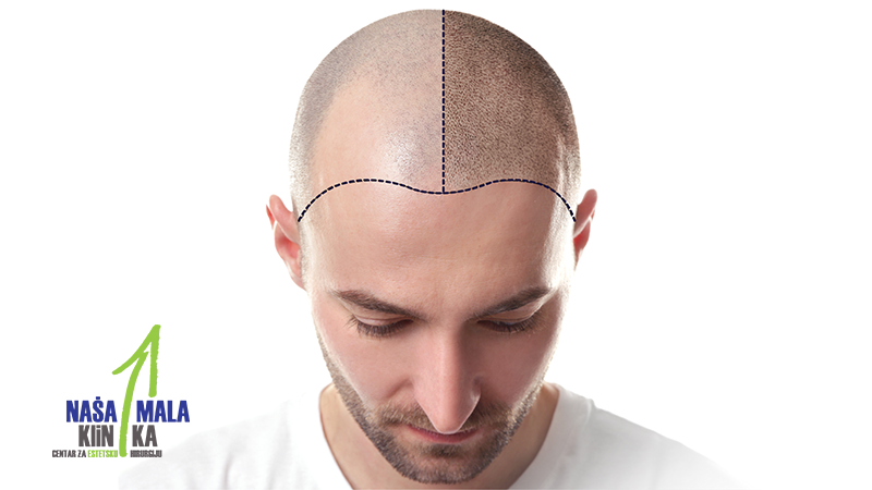 transplantacija-kose-nmk